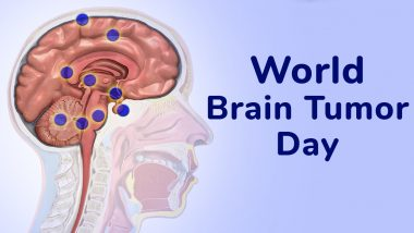 World Brain Tumour Day 2021: Know Date, History and Significance of the Day That Raises Awareness About Brain Tumor