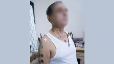 COVID-19 Vaccine, RT-PCR Test Make Your Body Magnetic? Metal Objects Getting Attached to Nashik Man's Torso, Health Officials Say No Correlation With Vaccination
