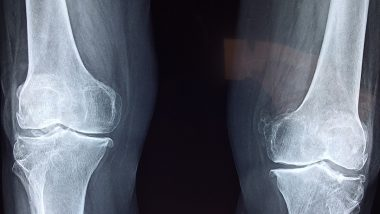 What Is Bone Death? From Symptoms to Causes and Prevention, Know Everything About Avascular Necrosis Emerging in COVID-19 Survivors
