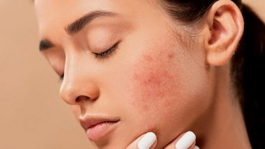 How to Get Rid of Pimples: From Tea Tree Oil to Aloe Vera, Natural Ways to Get Acne-Free Skin at Home