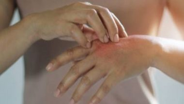 Light Therapy Helps Burn Injuries Heal Faster, Finds Study