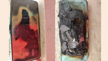 OnePlus Nord 2 Reportedly Explodes, User Suffers Trauma; Company Investigating The Issue