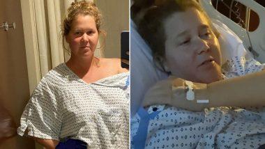 Amy Schumer Reveals Details of Recent Endometriosis Surgery (Watch Video)