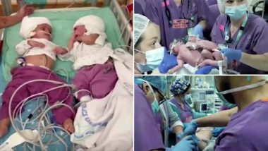 Conjoined Israeli Twins Finally Able To See Each Other Face-to-Face After Being Separated by Rare 12-Hour Surgery